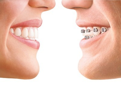 Invisalign mulford dental 2 (Custom)
